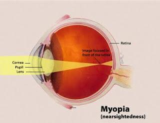 WAYS TO CURE MYOPIA