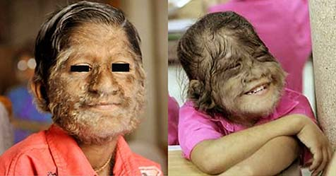 Hypertrichosis Symptoms and Treatment