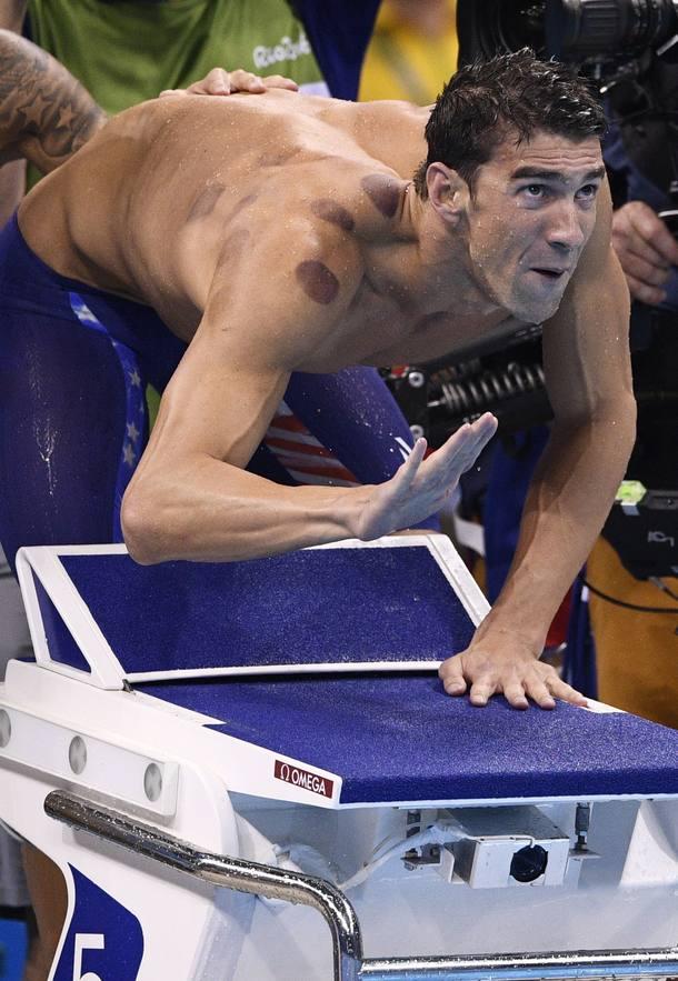 Ventosaterapia - Técnica Milenar da Medicina Chinesa - foi utilizada pelo nadador Michael Phelps - campeão Olímpico