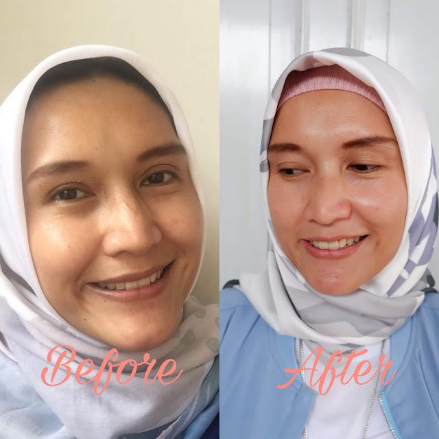 review serum pencerah wajah erha