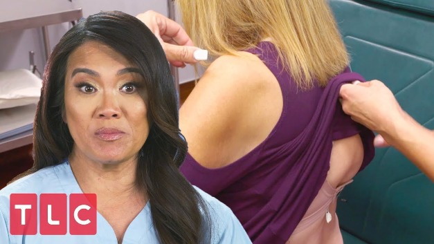 Dr. Pimple Popper Highlights Exotic Skin Conditions
