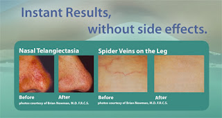 Veinwave Vanish Spider Veins with Veinwave!Other