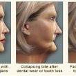 Dental Implants in Maple Grove MN. Don't Be Afraid To Smile Any Longer!