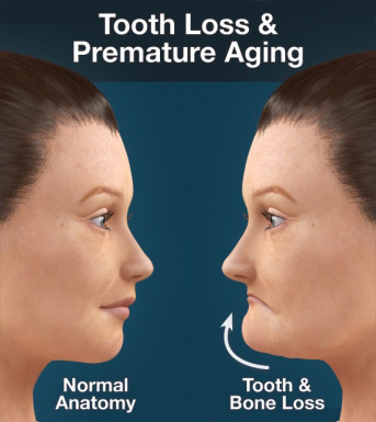 effect of tooth loss on face skin