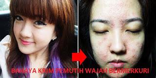 Bahaya Menggunakan Cream atau Obat Pemutih Wajah Bermerkuri