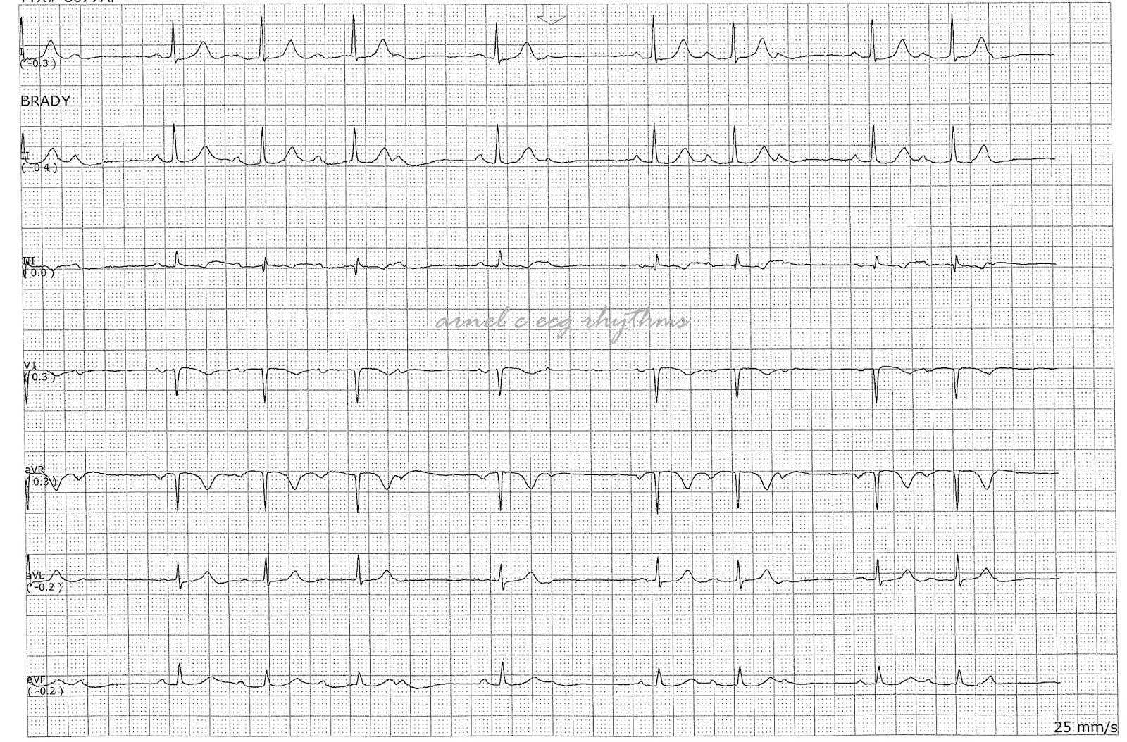 Ecg Rhythms Mobitz I With Wrong Lead Placement