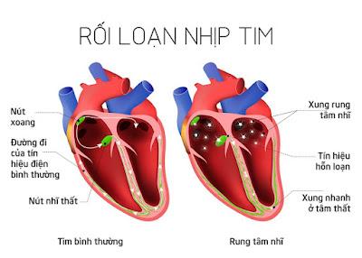 Hình ảnh thực tế trái tim của một người bệnh bị suy tim