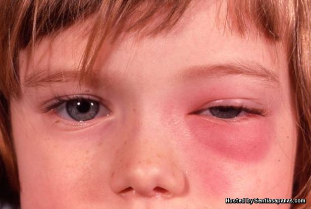 Alahan alergik