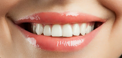 Dentures , Dental , Implants , Dental Implants