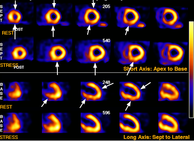 SPECT myocardial perfusion study