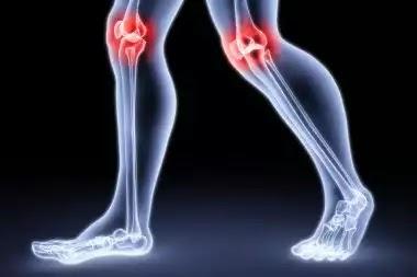 Osteoporosis qa