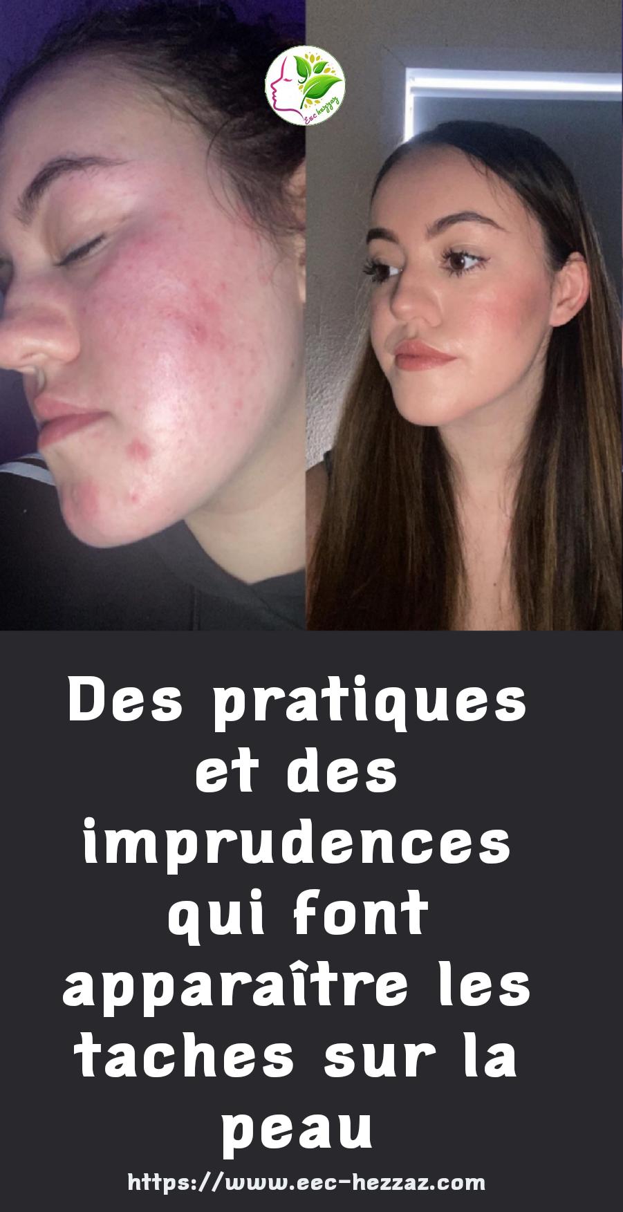 Des pratiques et des imprudences qui font apparaître les taches sur la peauDes pratiques et des imprudences qui font apparaître les taches sur la peau