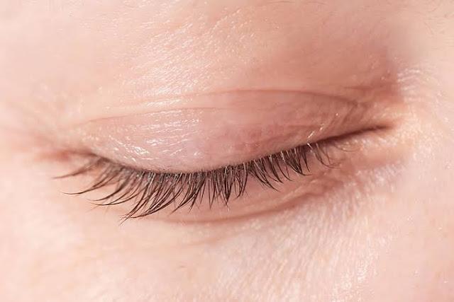 Tips menghilangkan kerutan di mata