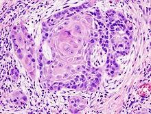 gambar Kanker kulit Carcinoma