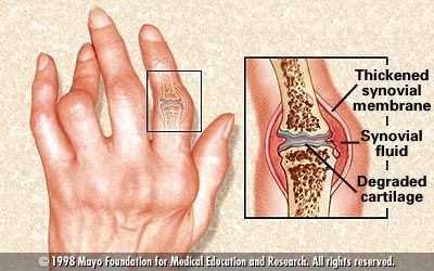Lutut sering bunyi ketika ditekuk