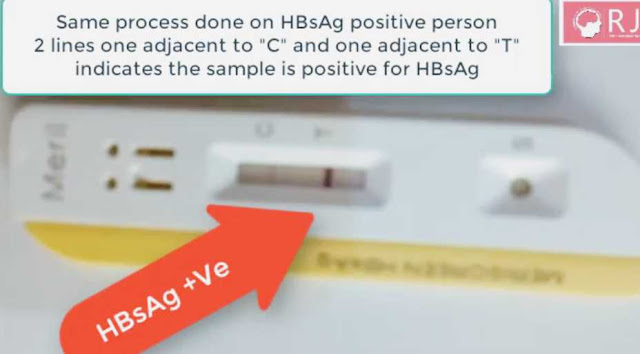 Hbsag-positive-result-kit