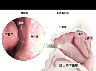 過敏造成鼻塞的原因: 下鼻甲腫大塞住