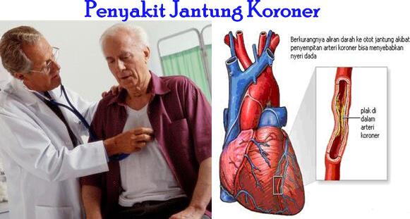 manfaat-jahe-untuk-penyakit-jantung