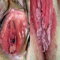 Jamur Kutil Kelamin Di Dinding Rahim