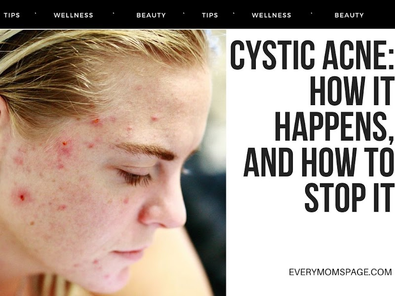 Cystic Acne: How It Happens, And How to Stop It