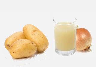 Potato Juice and Onion Juice Hair Pack