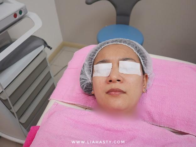 Rawatan Kulit GentlePeel di Klinik Pakar Dr Ko Juru