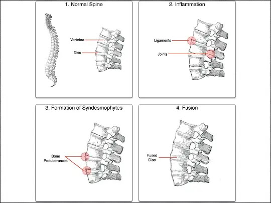 What is the best treatment for Ankylosing Spondylitis and symptoms