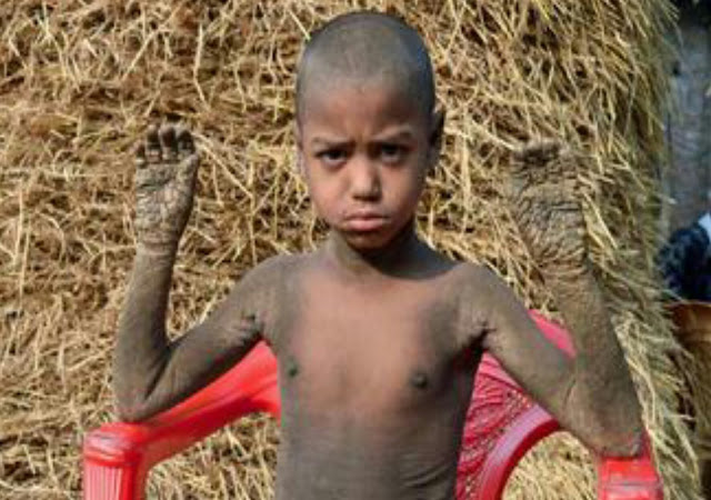 Menderita Penyakit Langka, Bocah Ini Berubah Jadi Batu
