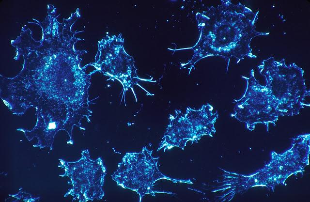 Cara Membedakan Tumor JInak dan Tumor Ganas