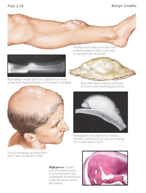 Osteoma Cutis