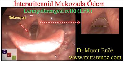laringofarengeal reflü - ekstraözofageal reflü - sessiz reflü - interaritenoid ödem