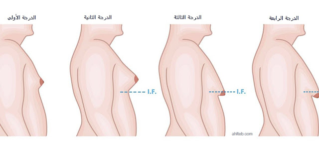 درجات-التثدي-عند-الرجال