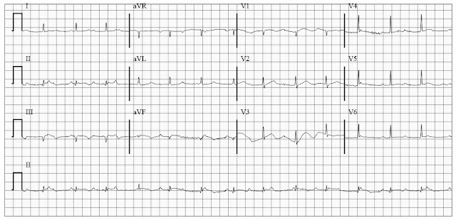 IWMI with second degree heart block