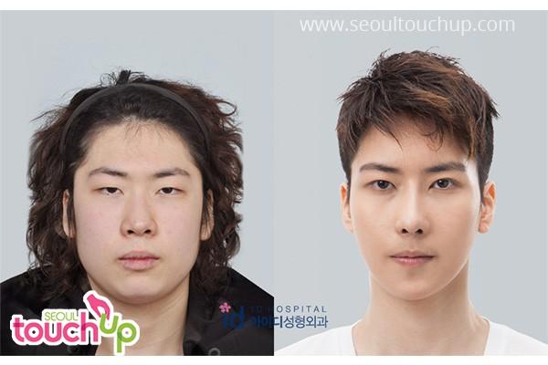 ศัลยกรรมจมูกชายเกาหลี