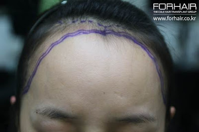 female hairline correction, hair transplant female, hair transplant depending on gender, forhair korea