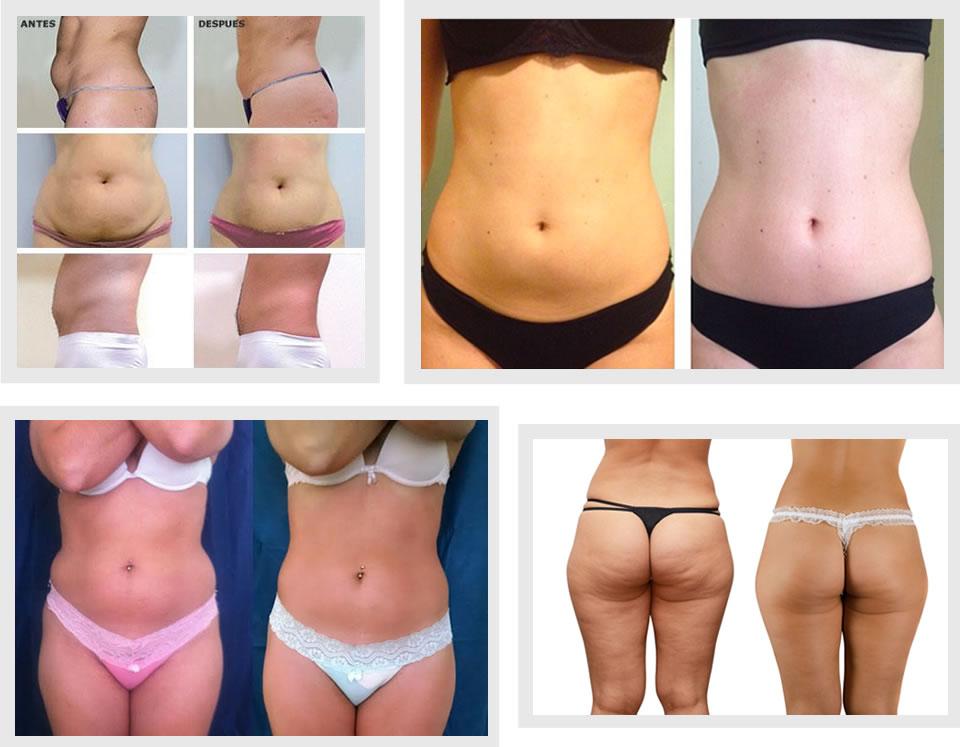 Famosos Criolipólise ~ Corpo Bonito Dermato Funcional & Estética UN83