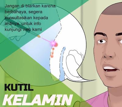obat untuk sembuhkan kutil pada kelamin pria