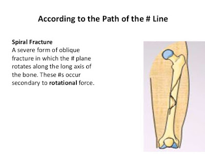 spiral fracture definition,fracture classification,fracture nursing management,nursing assessment