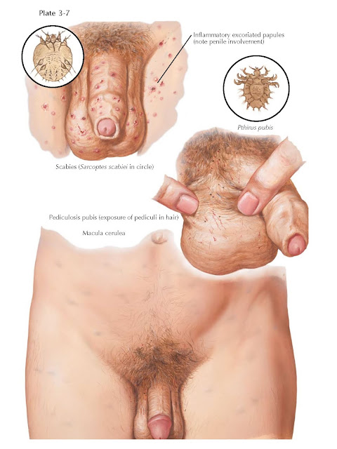 SCROTAL SKIN DISEASES II: SCABIES AND LICE