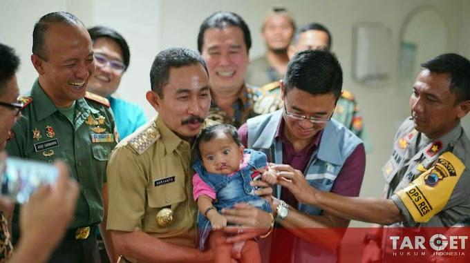 Bupati Haryanto Buka Baksos Operasi Bibir Sumbing