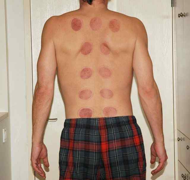 Cupping and Hijama