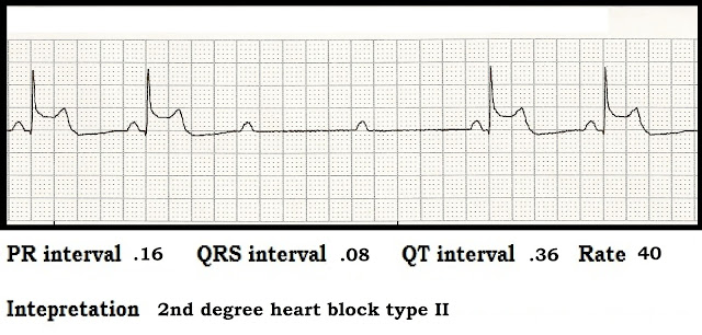 Float Nurse: ECG Rhythm Strip Quiz 81: Interval measurements