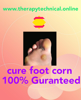 Feet corn treatment
