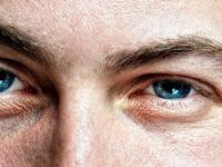 Terjadi Kelainan pada Mata Yuk Ketahui Sindrom Horner!