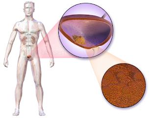 معلومات عن سرطان المثانة