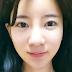 Sebal Dengan Bentuk Hidung Besar Membuat Wajah Besar [Operasi Plastik Hidung Terbaik Di Korea]