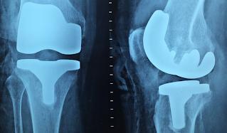 adult reconstructive orthopedics