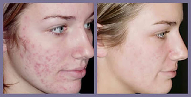 Treatment-of-acne-scars