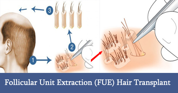 Follicular Unit Extraction (FUE) Hair Transplant Procedures Cost Results Review Side Effects