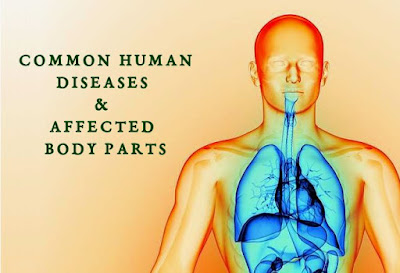 Common Human Disease & Affected Body Parts